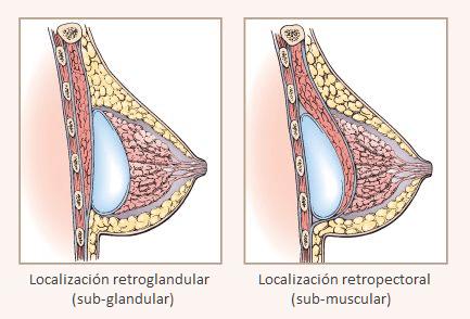 Tecnica-quirurgica-colocacion-implantes-de-senos