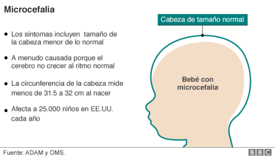 zika5 microcefalia