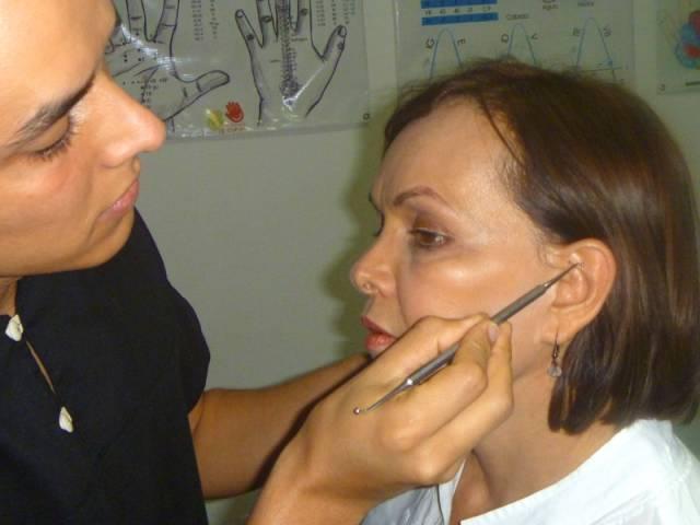 Reflexologia Auricular