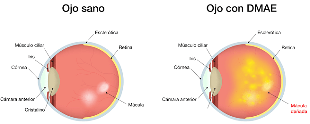 degeneración-macular-ojo