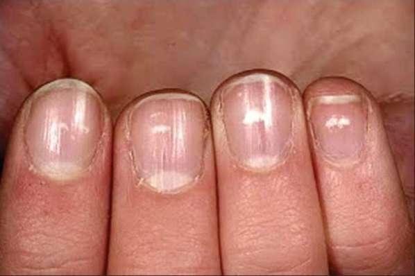 manchas -blancas en-las-uñas