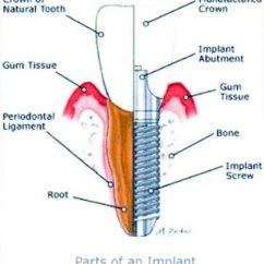 Desert Hawk Diagram Program Structure Example Services Dentist Dental Pueblo West Co 81007 General And Restorative Dentistry