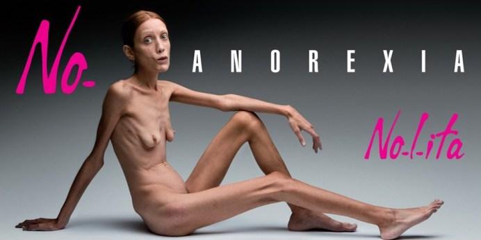 no-anorexia-oliviero-toscani