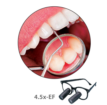 Dental Magnification  Expanded Field Loupes for a Wider