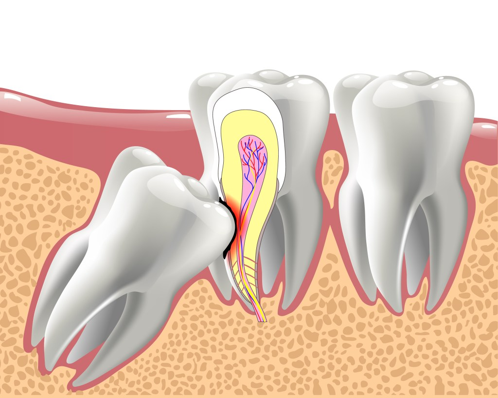 wisdom tooth causing nerve damage