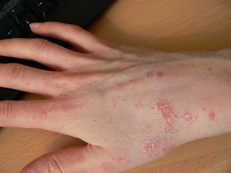 how to get rid of ringworm