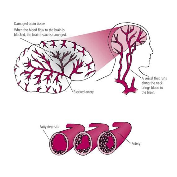 Avoiding heart attacks and strokes | Dessins