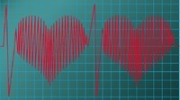 Early Diabetes Interventions May Also Reduce Heart Disease Risk