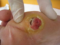 Researchers Find a Key to Healing Chronic Wounds