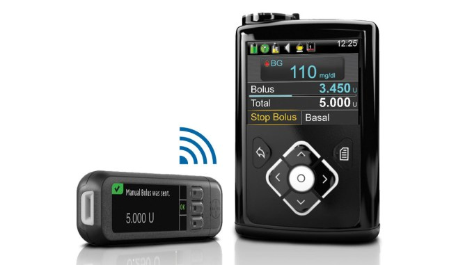 Three months with the Medtronic 640G – time for a review and