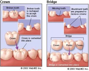 dental_crown