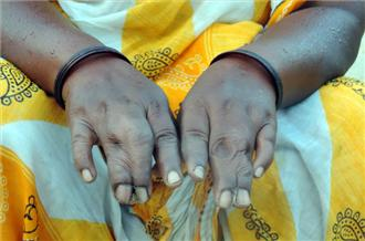 "Jingi Birulee was born with conjoined middle and ring fingers on both hands [Sanjay Pandey - Al Jazeera] Today, however, spontaneous abortions and miscarriages are common: ""Now, Jadugoda girls and boys are finding it difficult to find a match for themselves,"" he said. Radiation pollution Several surveys conducted by independent agencies, including Japan's Kyoto University and India's Jadavpur University, have confirmed radiation pollution in the air, water and soil in Jadugoda."