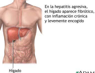 Prevención y Control en Hepatitis Virales