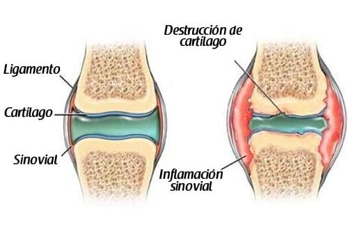 artrosis y desgaste del cartílago de la rodilla