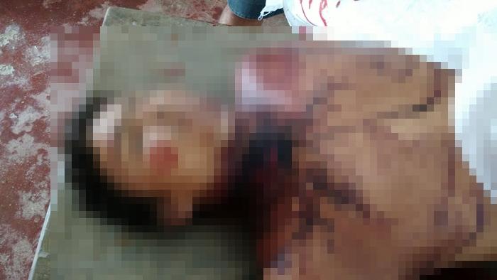 Homem morreu após se socorrido ao hospital (foto: WhatsApp)