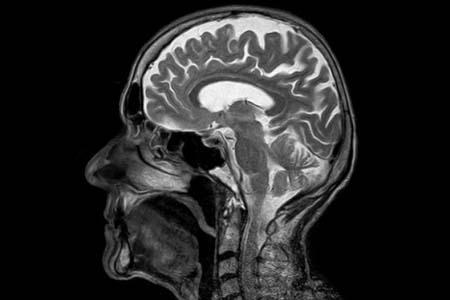 Un equipo de científicos del Instituto de Investigación del Cáncer de Londres, Reino Unido, ha realizado el estudio sobre el cáncer cerebral más exhaustivo de la historia y ha identificado 13 alteraciones genéticas previamente no descubiertas