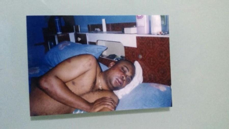 Miguel Chikipo 5 días después de la brutal paliza.