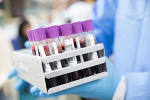 ¿Quieres donar sangre?, en el Centro Metropolitano de Sangre te pasan a buscar y dejar