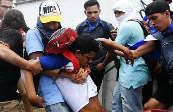 Tiroteo en multitudinaria marcha contra Ortega en Nicaragua