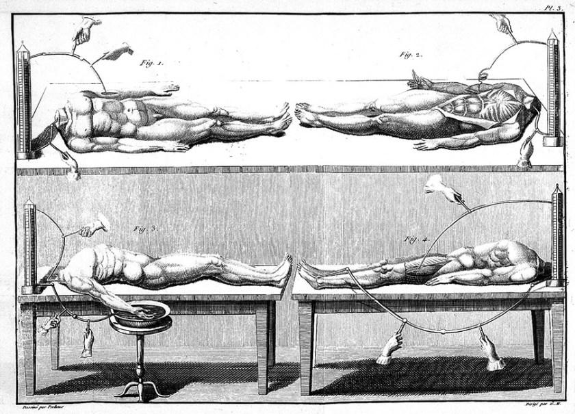 Giovanni Aldini, galvanism experiments. Image