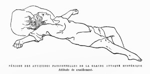 Charcot, Richer, 1887: crucifixion pose of an hysteric. Image