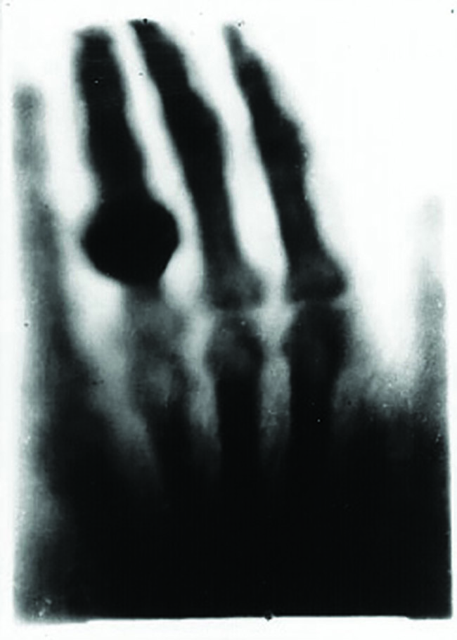 Hand with Ring (1895). Image