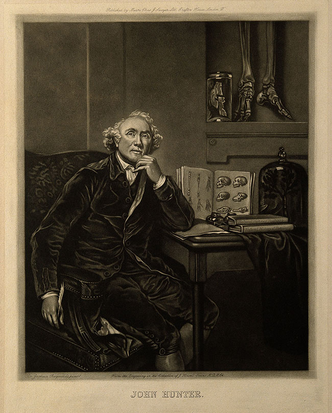 John Hunter. Mezzotint after Sir J. Reynolds, 1786. Plate