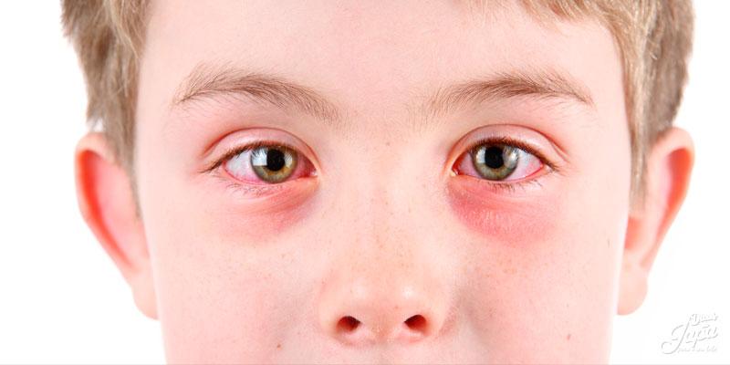 Conjuntivite em crianças: 3 cuidados importantíssimos