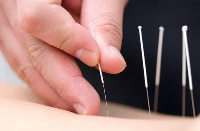Die besonderen Vorteile der Akupunktur