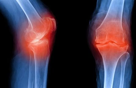 Osteoarthritis: Forscher finden möglichen Schlüssel zur Prävention