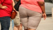 Obezite ameliyatları ne zaman yapılmalı?