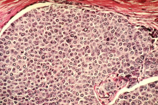Key Difference Between Cancer Cells and Normal Cells
