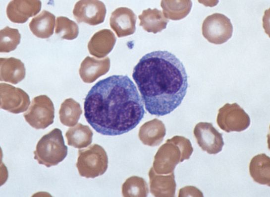 Difference Between Monocyte and Macrophage