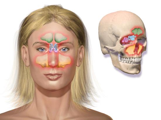 difference betweeen Rhinitis and Sinusitis-sinusitis