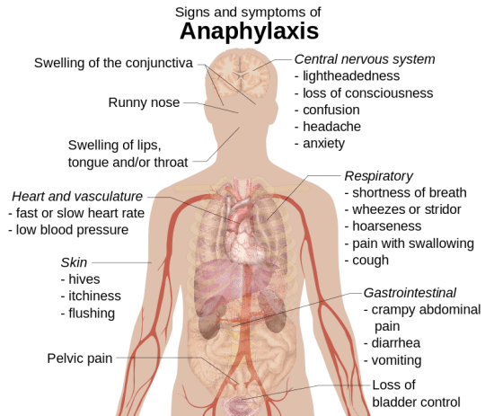 key difference between Anaphylaxis and Allergic Reaction
