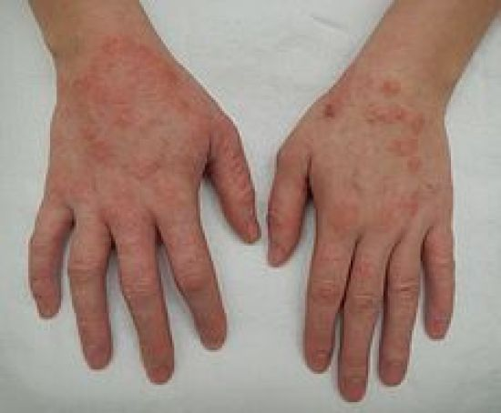 Difference Between Eczema and Hives