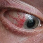 Difference Between Scleritis and Episcleritis