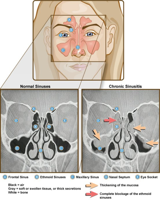 Key Difference - Sinus vs Allergies