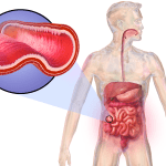 Difference Between IBS and Crohn's