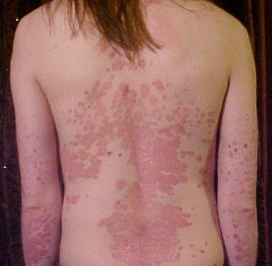 Difference Between Seborrheic Dermatitis and Psoriasis