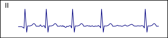 Difference Between AFIB and VFIB and SVT