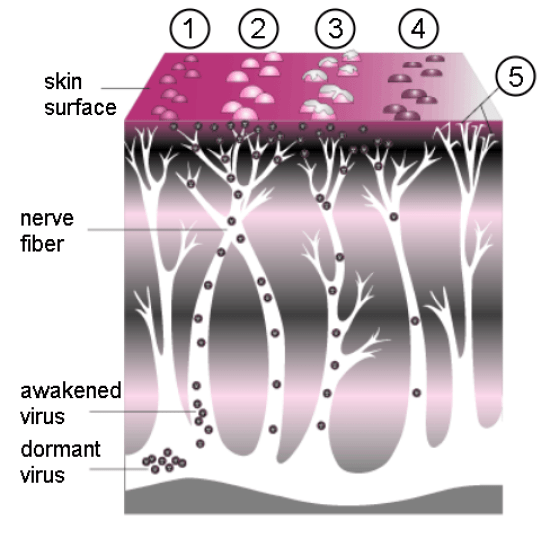 Difference Between Shingles and Herpes_Figure 01