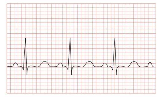 Difference Between Tachycardia and Bradycardia