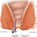 Difference Between Hemorrhoids and Fissures