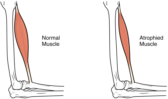 Difference Between Hypertrophy and Atrophy