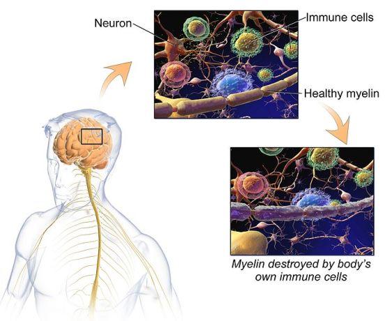Key Difference - MS vs Parkinson's