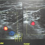 Difference Between PE and DVT