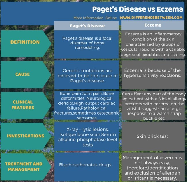Difference Between Paget's Disease and Eczema in Tabular Form