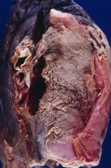 Difference Between Empyema and Emphysema
