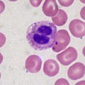 Difference Between Microphage and Macrophage